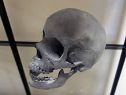 3d печать моделей черепа