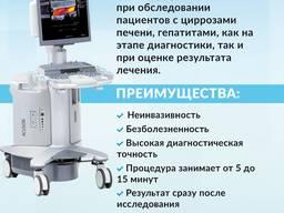 Эластография печени сдвиговой волной в Альт-Мед Одесса