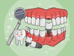 Имплантация зубов | Белая Церковь