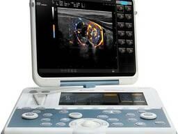 Новый портативный Smart УЗИ аппарат MyLab Gamma