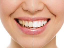 Отбеливание зубов | Белая Церковь